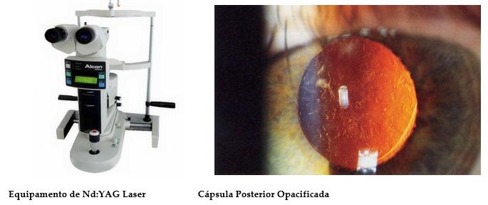 Capsulotomia Com Yag Laser