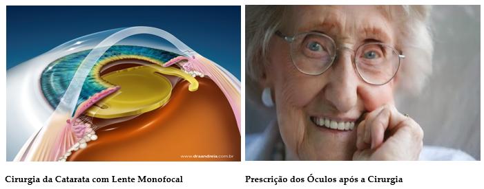0720edcbe5 A Cirurgia de Catarata com o implante da lente intraocular monofocal tem  como objetivo primordial o Tratamento da Catarata, sendo necessária a  prescrição ...