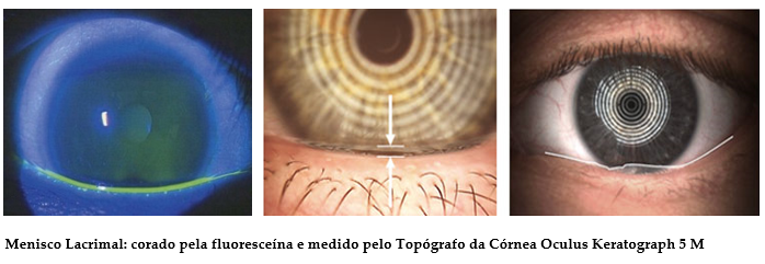 Cum se restabilește vederea folosind metoda bates. Cum de a îmbunătăți viziunea în casă: metode